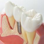 インプラント歯周炎の恐ろしさと正しいアフターケアの方法